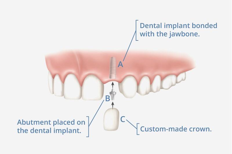 ایمپلنت دندان و جایگزینی دندان های طبیعی