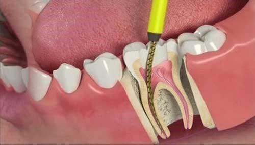 درمان مرگ دندان