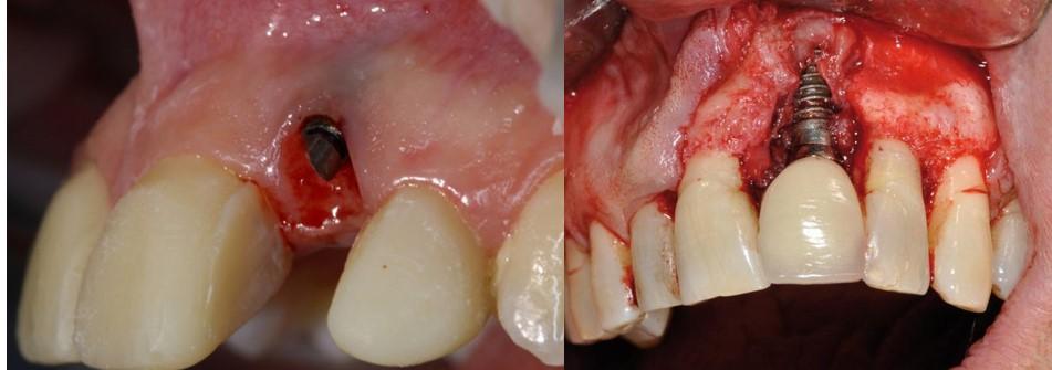 عفونت ایمپلنت دندان
