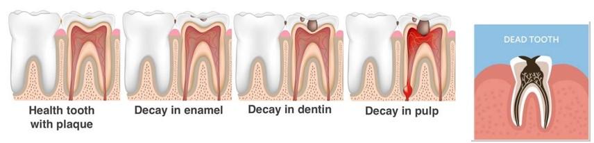 مرگ دندان (از دست رفتن دندان)