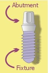 اجزاء ایمپلنت دندانی
