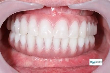 کاشت ایمپلنت دندانی