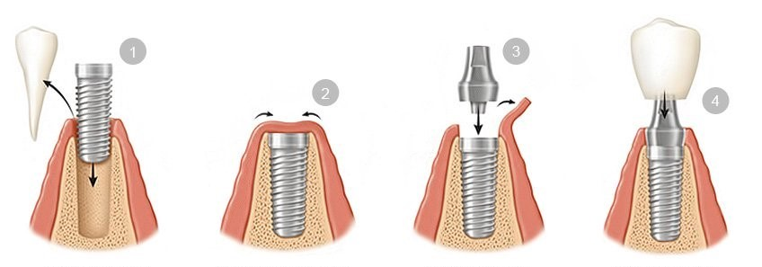 خطرات و عوارض جانبی کاشت ایمپلنت دندانی