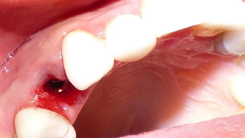 مراقبت های لازم در روز جراحی ایمپلنت دندانی