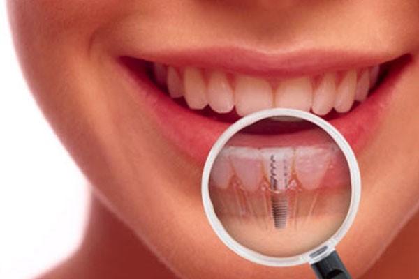 کاشت ایمپلنت دندانی در دوران بارداری