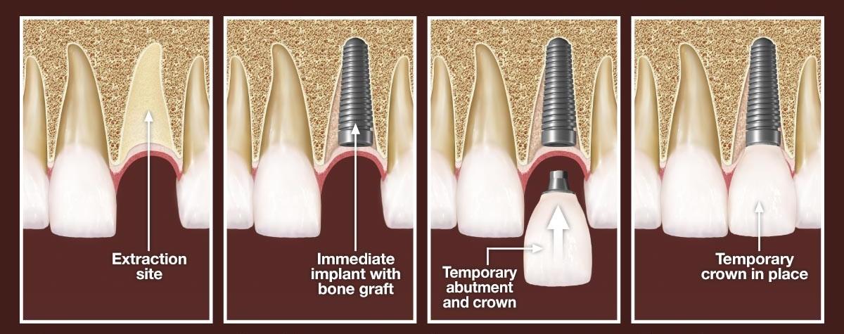 کاشت فوری ایمپلنت پس از کشیدن دندان