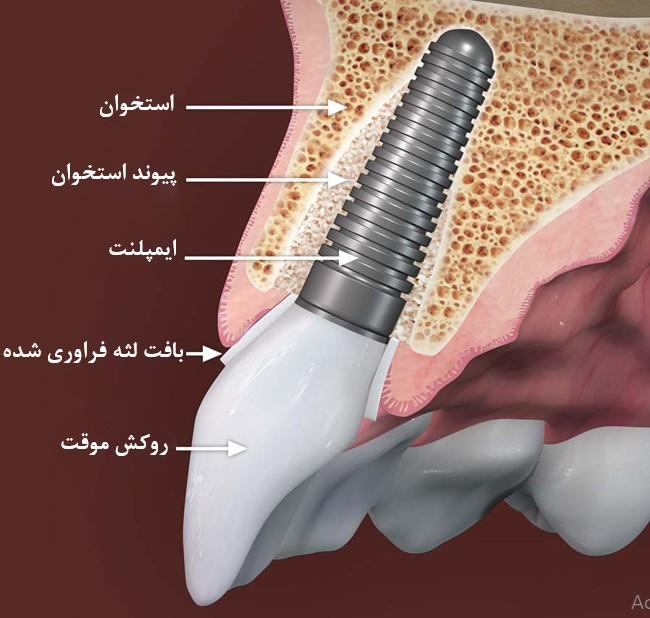 بازسازی و تقویت استخوان و لثه پیش از کاشت ایمپلنت فوری