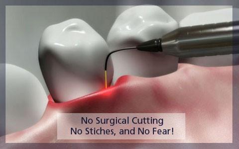 کاربرد لیزر در دندانپزشکی