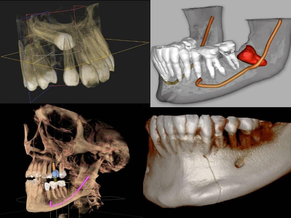 رادیوگرافی برای کاشت ایمپلنت دندان
