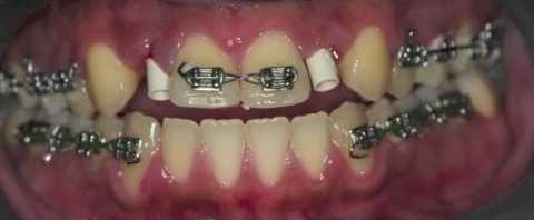 کاشت ایمپلنت دندانی و درمان ارتودنسی