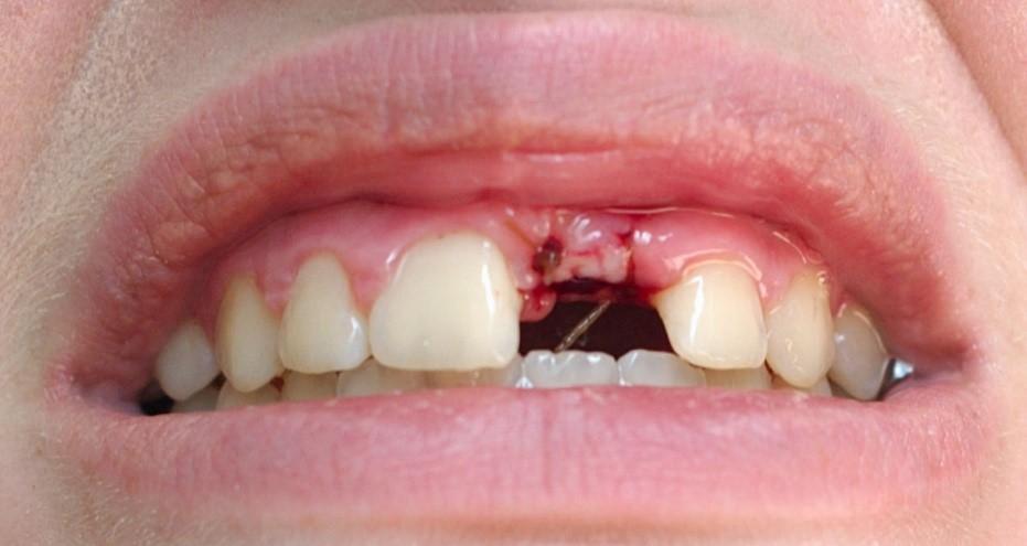 آمادگی لازم برای کاشت ایمپلنت های دندانی