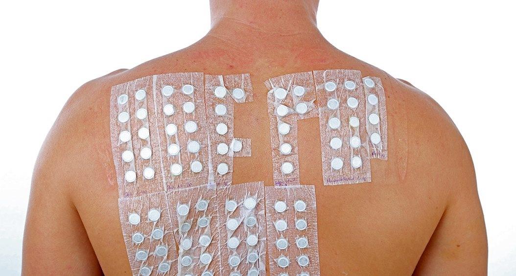 حساسیت به ایمپلنت های تیتانیومی