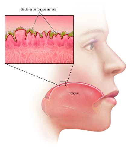 بوی بد دهان ناشی از ایمپلنت