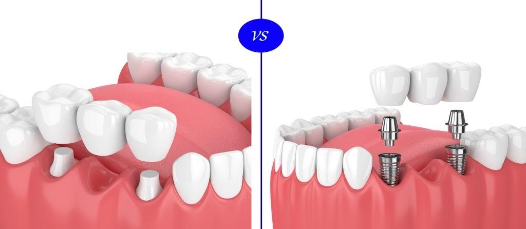 مقایسه ایمپلنت دندانی و بریج دندانی