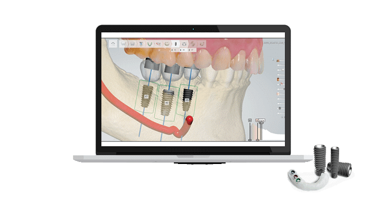 دندانپزشکی دیجیتال؛ کاشت ایمپلنت