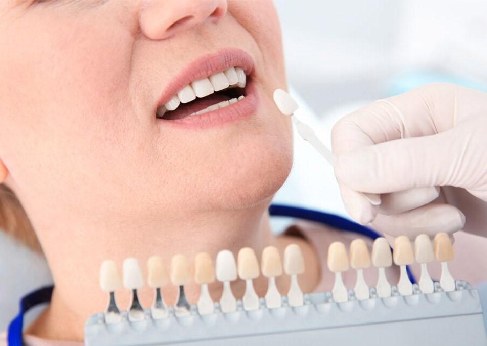 ونیرهای دندانی و آنچه باید در مورد آنها بدانید