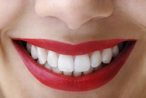 ونیرهای دندانی