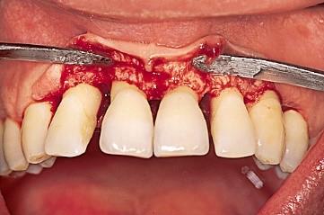 جراحی فلپ برای درمان بیماری لثه